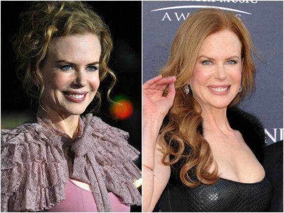 """""""Scanpix"""" nuotr./Nicole Kidman 2009 (kairėje) ir 2011 metais."""