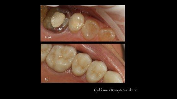 """Klinikos """"Medwell"""" nuotr./Funkcinės odontologijos pavyzdys"""