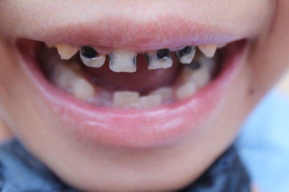 123RF.com nuotr./Sugedę dantys