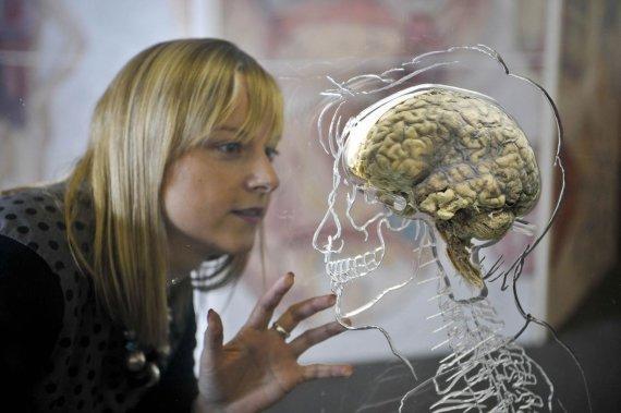Scanpix nuotr./Žmogaus smegenys