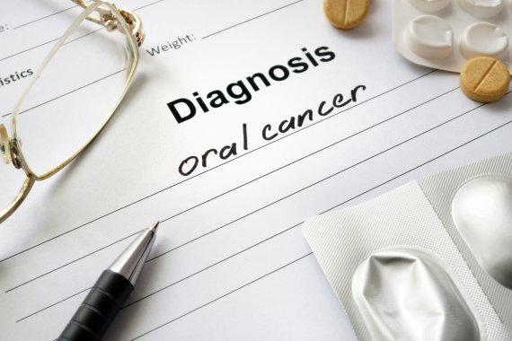 123RF.com nuotr./Burnos vėžio diagnozė
