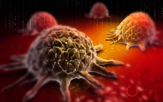 """""""Scanpix"""" nuotr./Vėžio ląstelė"""