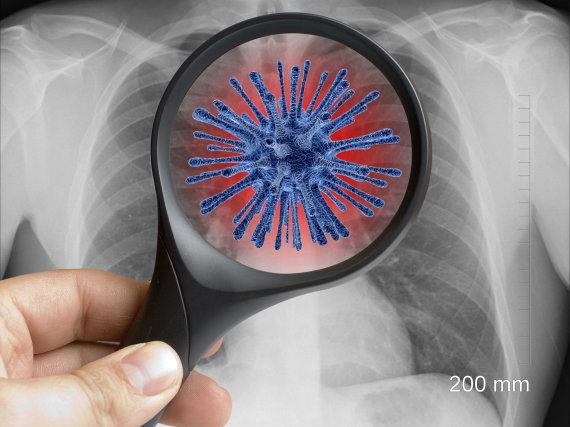 123RF.com nuotr./Koronavirusas