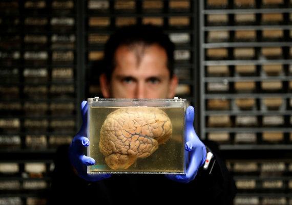 """""""Reuters""""/""""Scanpix"""" nuotr./Muziejaus eksponatas – fiksuotos žmogaus smegenys"""