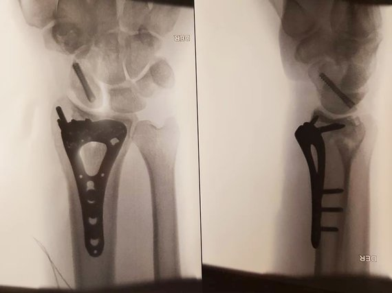 Asm. albumo nuotr./Balio Bardausko kaulų lūžių rentgeno nuotraukos
