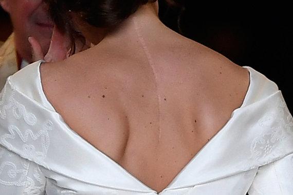 "AFP/""Scanpix"" nuotr./Princesės Eugenie randas"