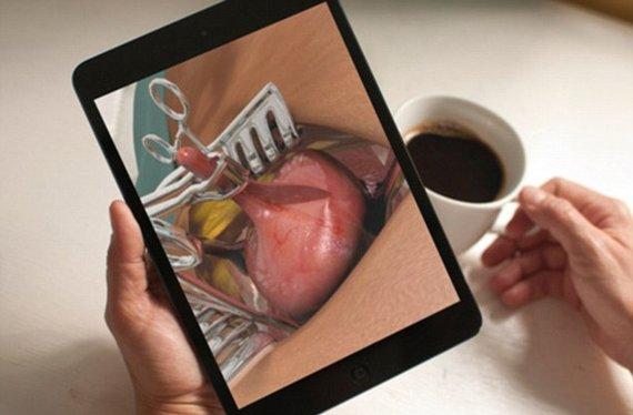 Chirurgams skirta programėlė patiko pacientams