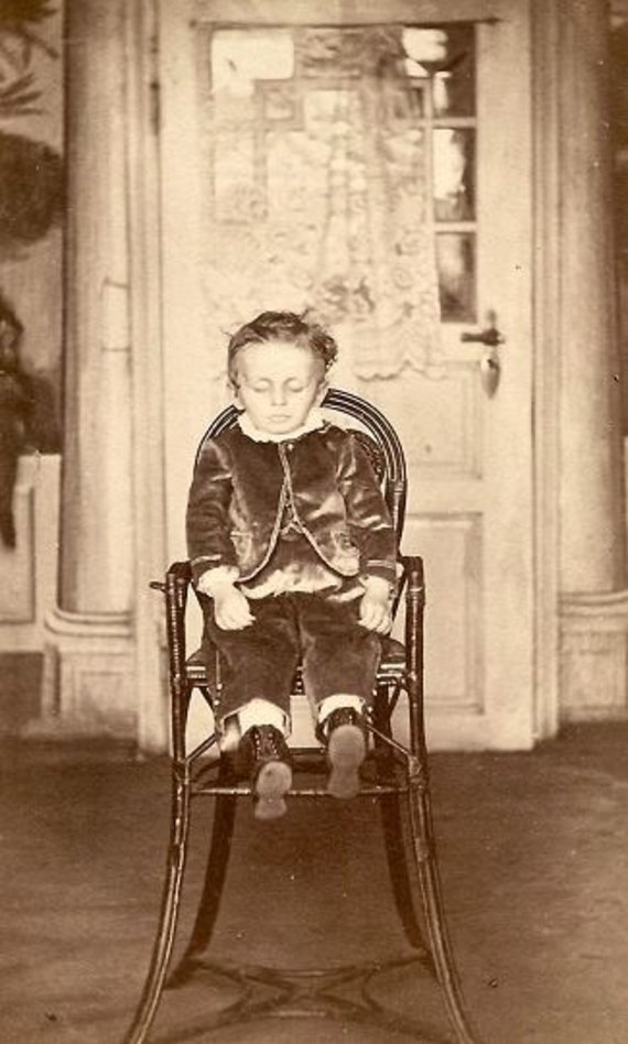 Wikimedia vartotojo Boatswain88 nuotr. / CC BY-SA 3.0/Miręs vaikas kėdėje, apie 1860 m. daryta nuotrauka