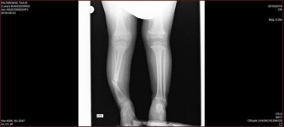 Asmeninio albumo nuotr./Tajaus kojos rentgenograma