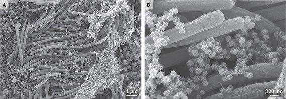 C.Ehre nuotr./Nespalvotose SARS-CoV-2 nuotraukose – daugiau mokslininkams reikalingo kontrastingumo