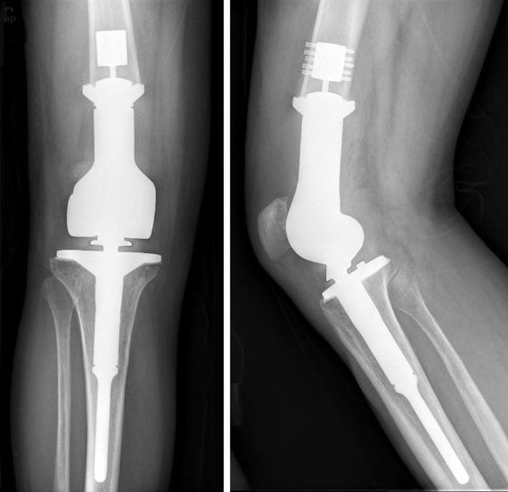 commons.wikimedia.org nuotr./Titaninis kelio implantas