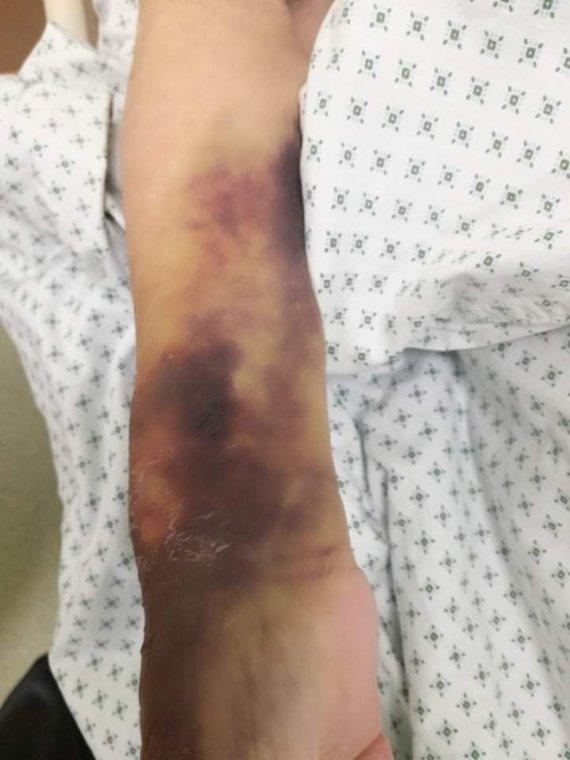 Asmeninio archyvo nuotr./Daivos padaryta mamos rankos nuotrauka, atvykus į ligoninę