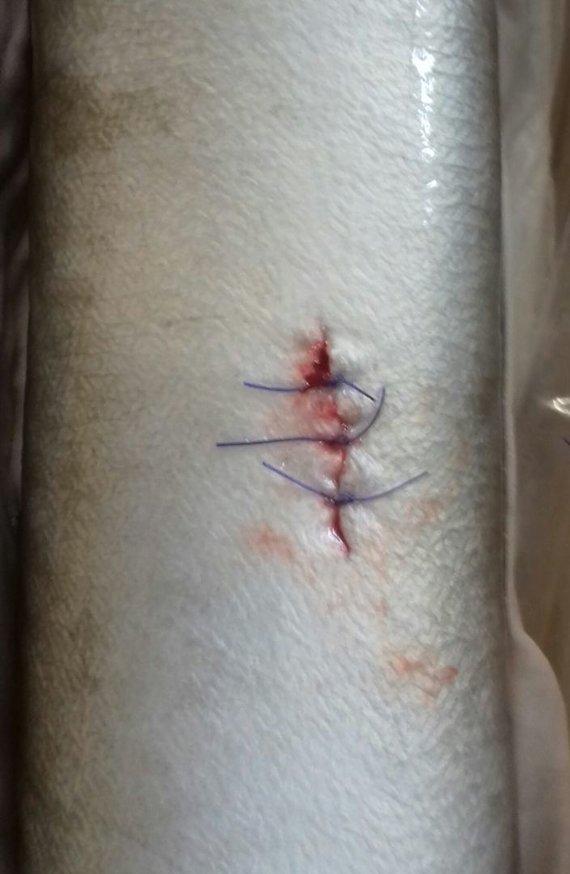 Asmeninio archyvo nuotrauka/Po siųstuvo implantavimo užsiūta pjūvio vieta užtepama antiseptiku.