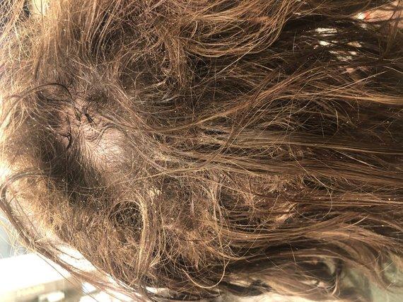 15min skaitytojo nuotr./Plaukų priauginimo procedūros rezultatas