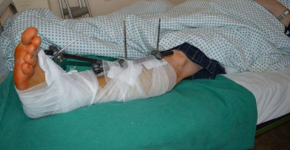 Kauno klinikinėje ligoninėje – pacientų su sunkiomis traumomis antplūdis