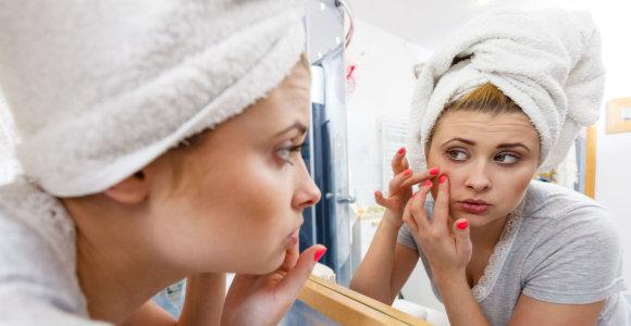Kaip gydote aknę? Pasitikrinkite ir išvenkite odos priežiūros klaidų