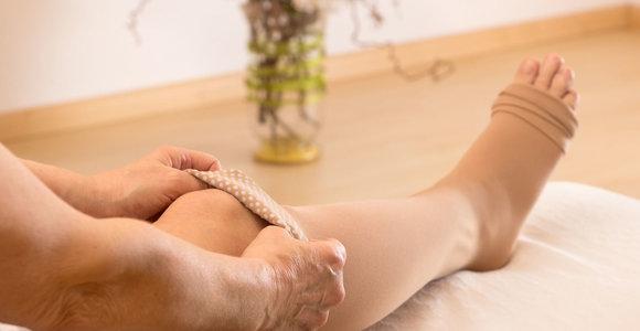 Išsiplėtusios venos ir kompresinės kojinės