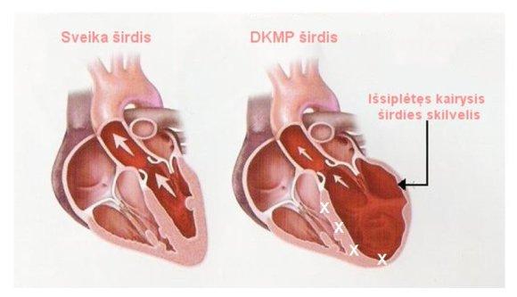 sveikas.lt/Sveiko (kairėje) ir sergančio dilatacine kardiomiopatija žmogaus širdis