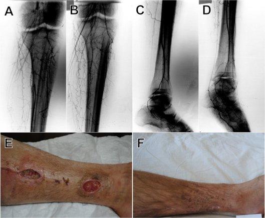 Sėkmingas eksperimentas: kamieninių ląstelių terapija padėjo išvengti galūnių amputacijos