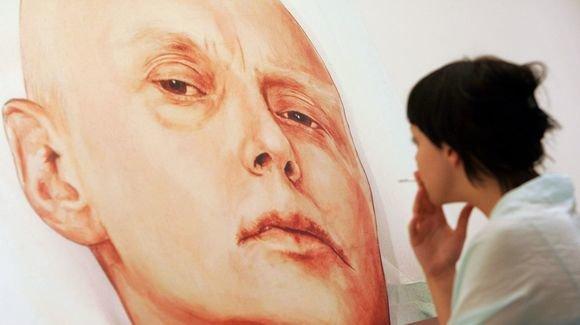 AFP/Scanpix nuotr./Aleksandro Litvinenkos mirties patale nuotrauka