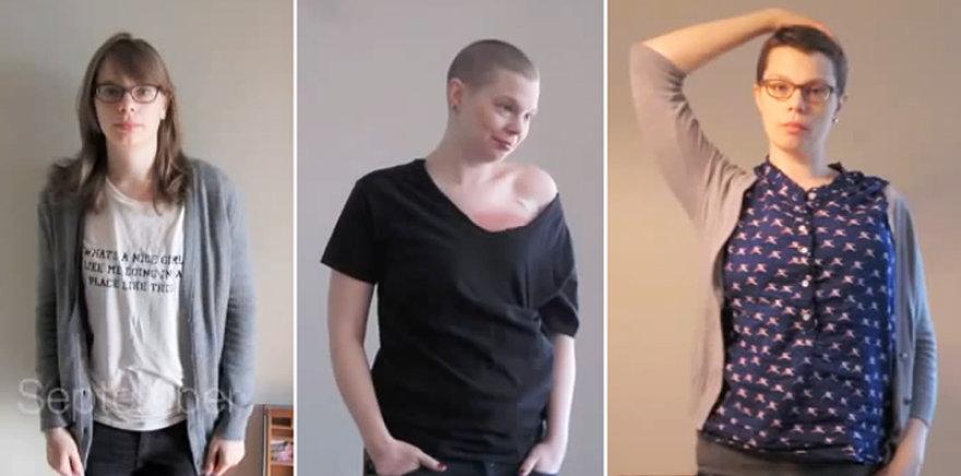 Krūties vėžiu sirgusi Emily Helck