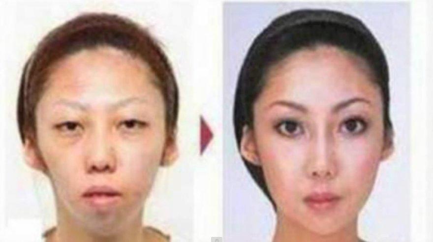 Jian Fengo žmona prieš ir po plastinių operacijų