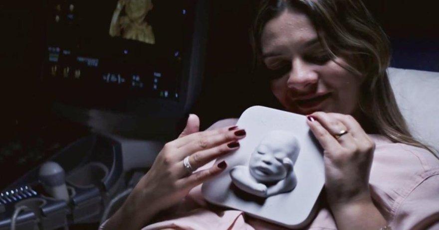 """Akla būsima mama Tatjana """"pamato"""" savo dar negimusį sūnų"""