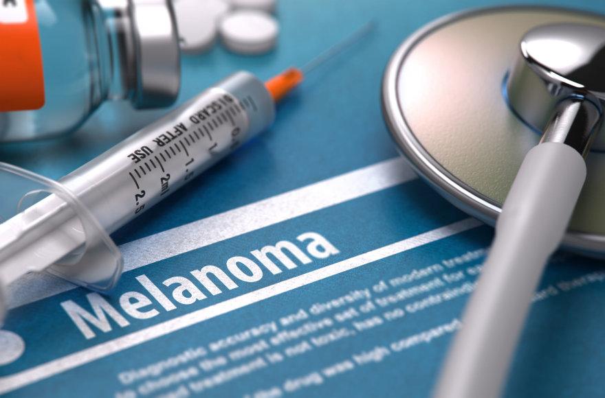 Odos vėžys – itin grėsminga liga.