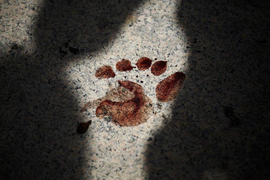 Sužeisto žmogaus pėdos atspaudas