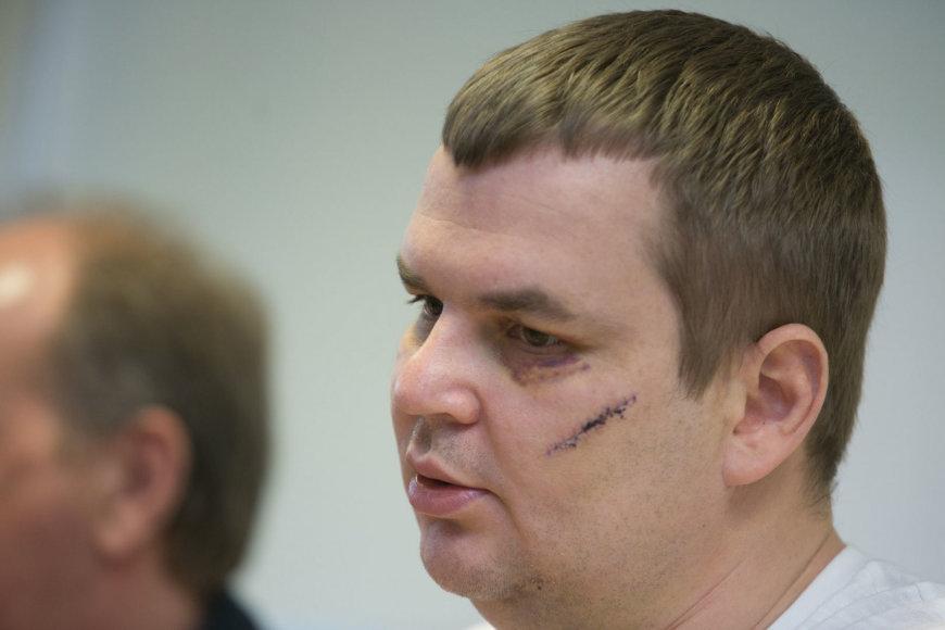 Automaidano lyderio ukrainiečio Dmytro Bulatovo spaudos konferencija