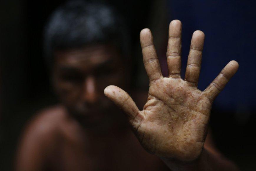 Bangladešo valdžia nesiima priemonių išspręsti arseniku užteršto vandens problemos