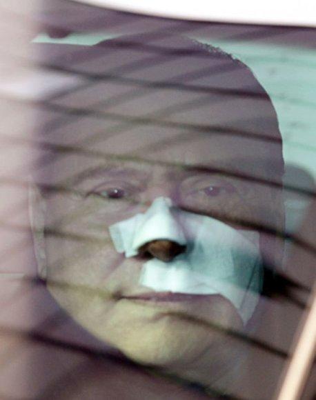 Silvio Berlusconi po plastinės operacijos