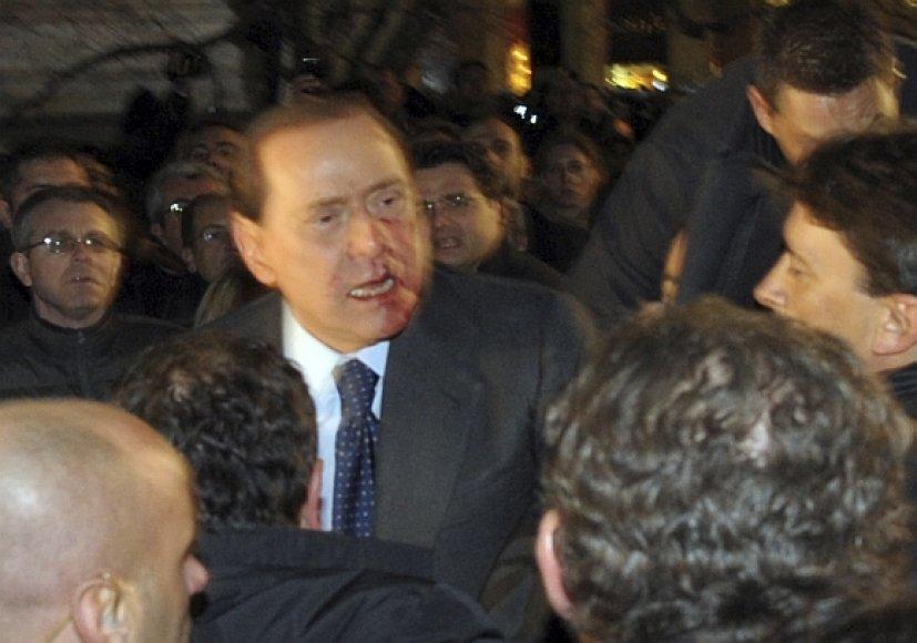 Po smūgio Silvio Berlusconi veidas paplūdo krauju.