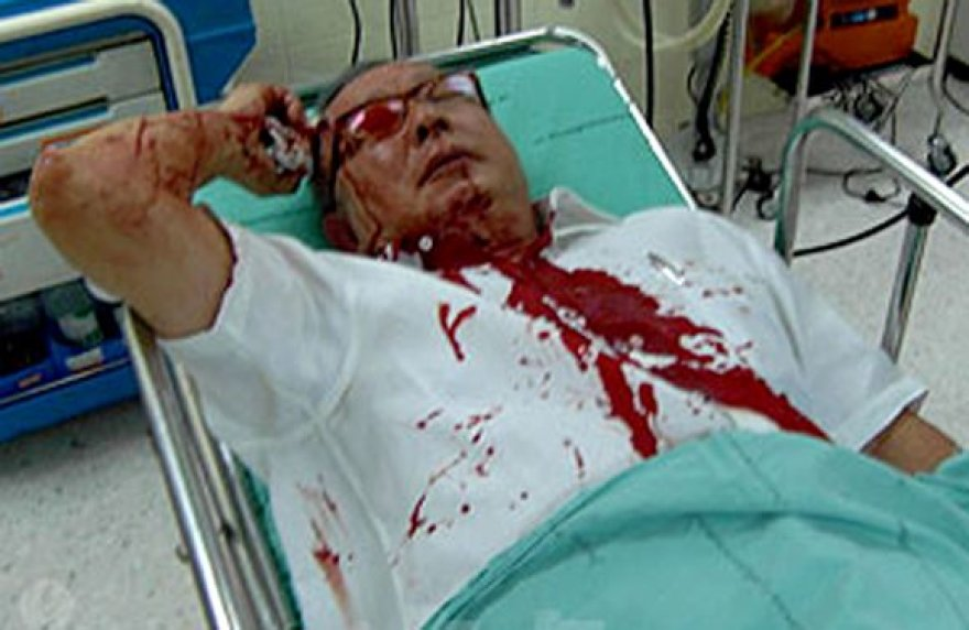 Sužeistas Sondhi Limthongkulas