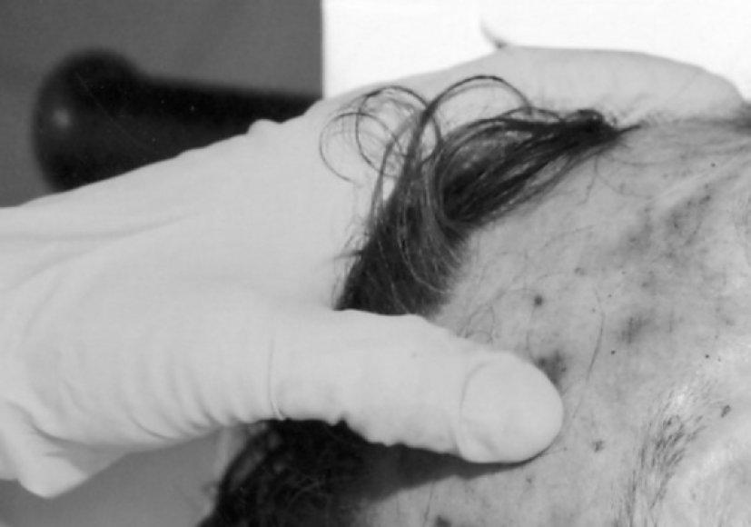 Ekspertas apžiūri D.Kedžio galvą