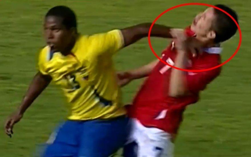 Bryanas Carraso (dešinėje) pats sugriebė už varžovo rankos ir tyčia trenkė šia sau per veidą.