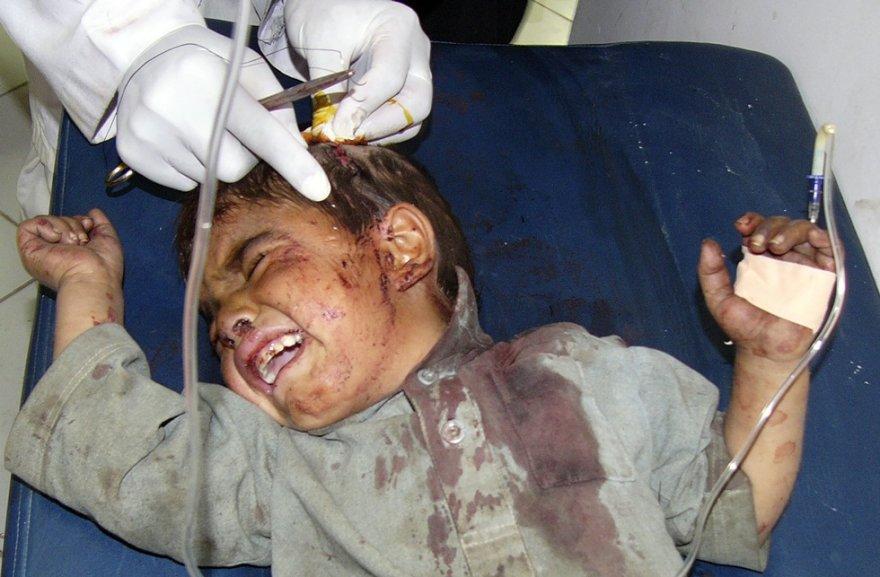 Atakos metu sužeistas berniukas nuvežtas į ligoninę.