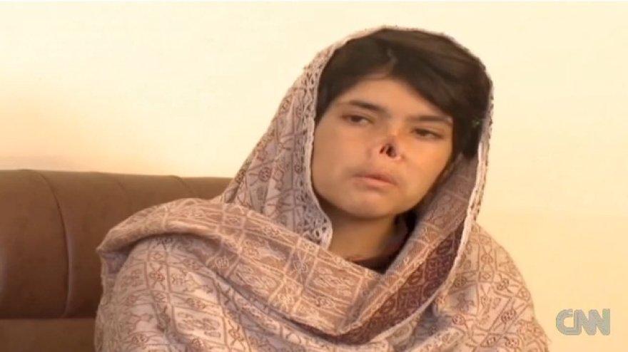 Afganistanietė Bibi Aisha, kuriai už tai, kad ji pabėgo iš savo vyro namų, buvo nupjautos ausys ir nosis