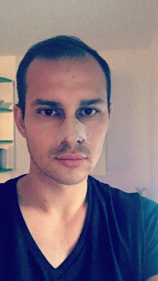 Raimundo Adžigausko nuotr./Algimantas Mingaila-Soliaris po plastinės nosies operacijos