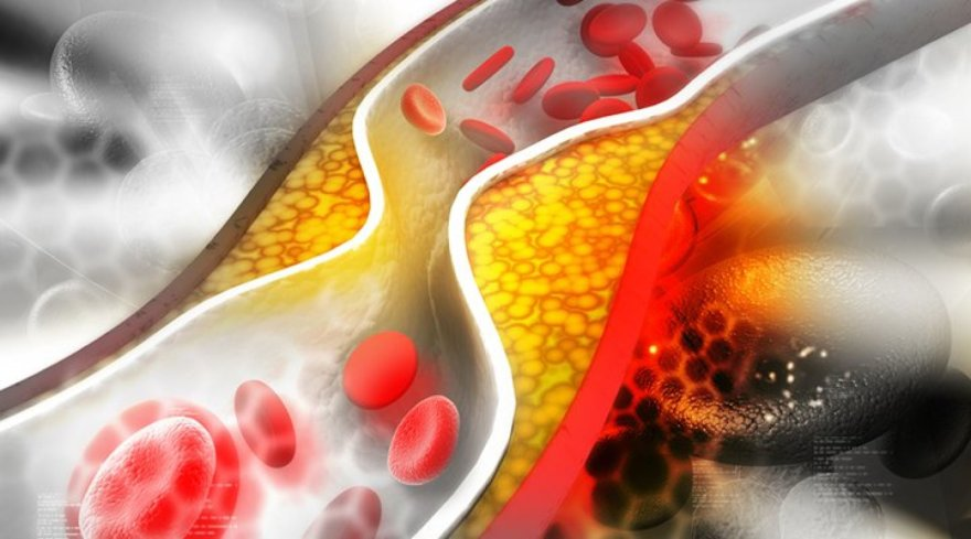 123RF.com nuotr./Cholesterolis kemša kraujagysles