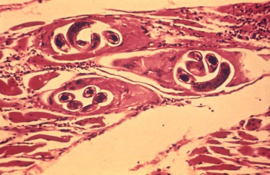Trichinų kapsulės raumeniniame audinyje