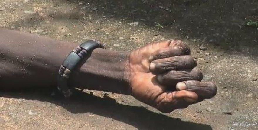 Ranka vyro, kuris, buvo manyta, mirė nuo Ebolos viruso