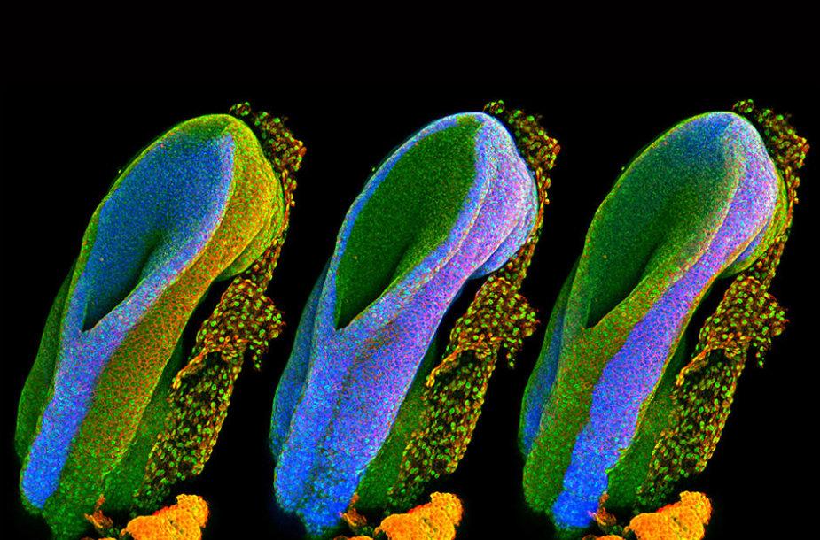 Ankstyvieji pelės nugaros smegenų vystymosi etapai