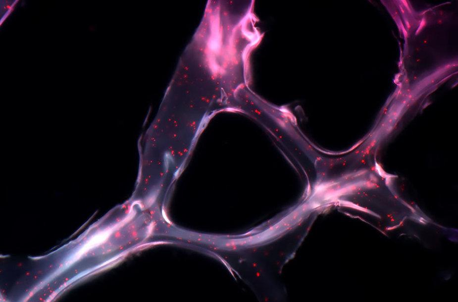 miRNR kovos su vėžiu procese