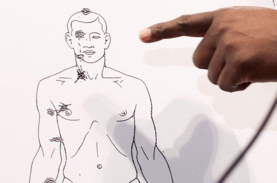 M.Browno autopsijos diagrama