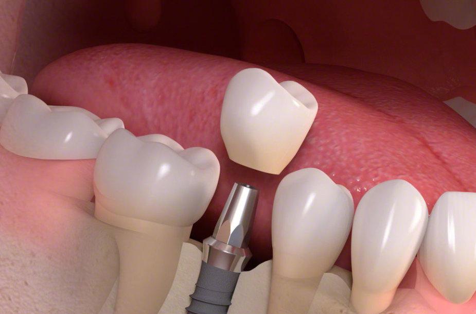 Vieno danties atkūrimas