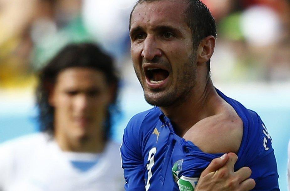 Italijos futbolininkas Giorgio Chiellini rodo petį, į kurį jam įkando Urugvajaus futbolininkas Luisas Suarezas