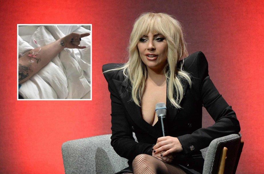 Lady Gaga dėl didelių skausmų paguldyta į ligoninę