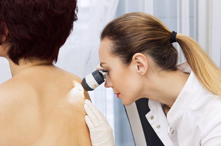 Dermatologė apžiūri apgamą