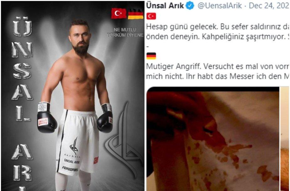 Unsulas Arikas parodė savo žaizdas po užpuolimo Berlyne.